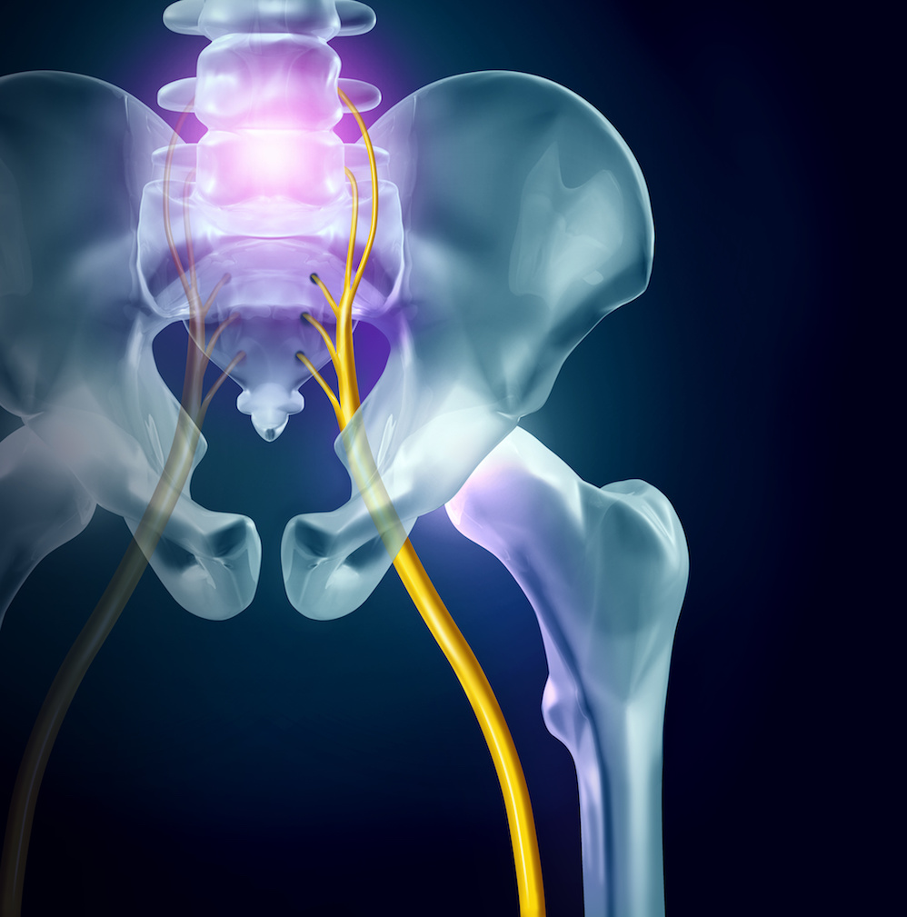 sciatica treatment exeter